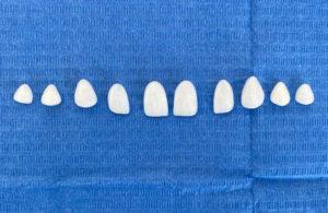 facetas dentarias